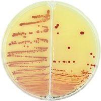 sector agar plates